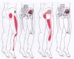 下肢のトリガーポイント