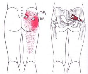 臀部のトリガーポイント